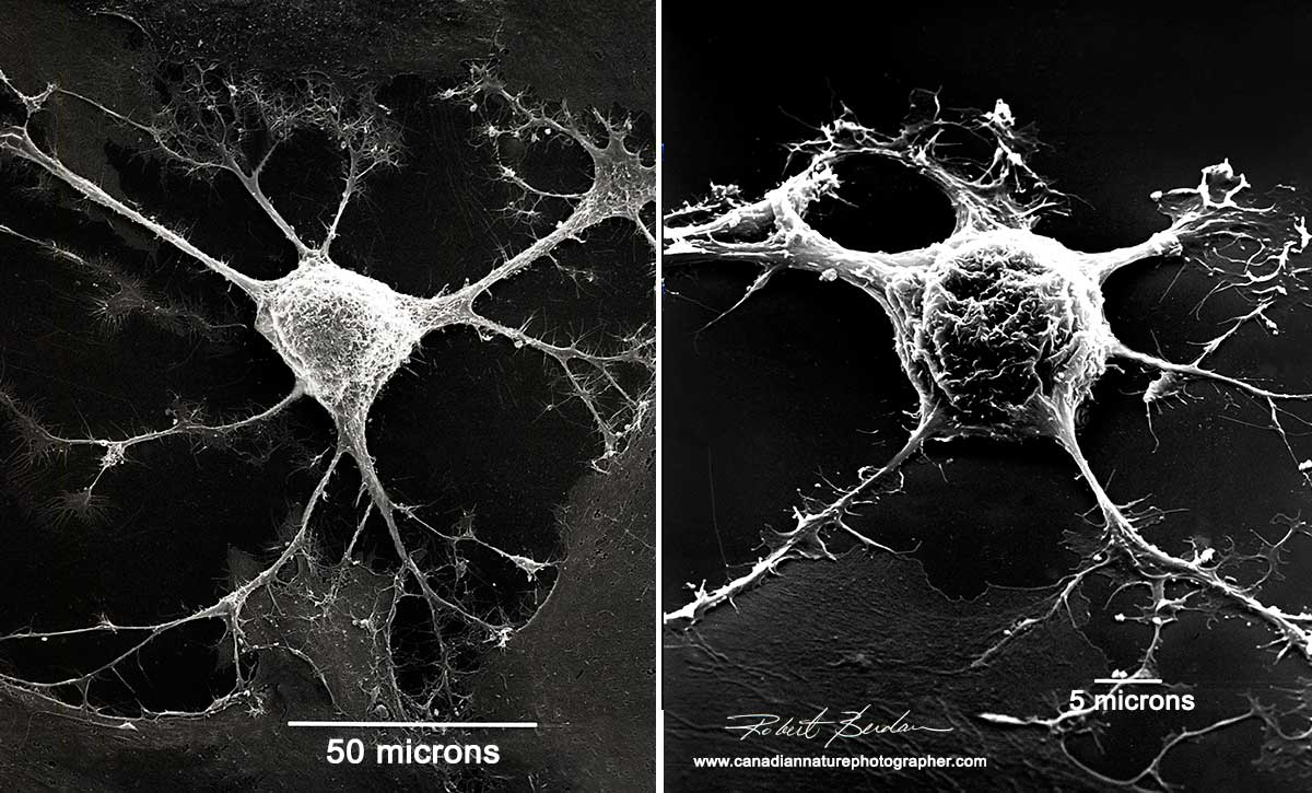 Mouse glial cells in culture by Scanning electron microscopy Robert Berdan