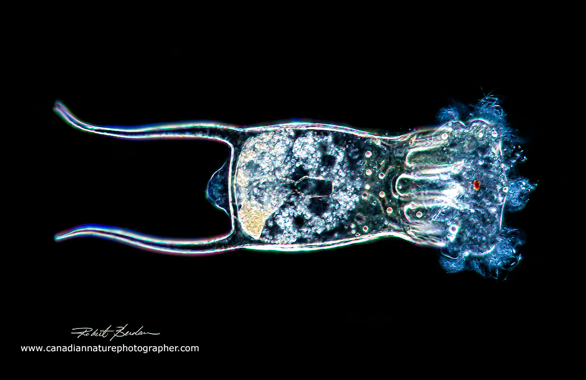 Rotifer Keratella quadrata Darkfield microscopy 200X by Robert Berdan ©