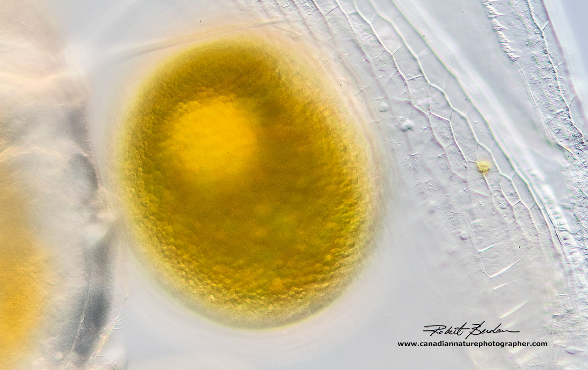 Single egg inside the Daphnia carapace by Robert Berdan ©