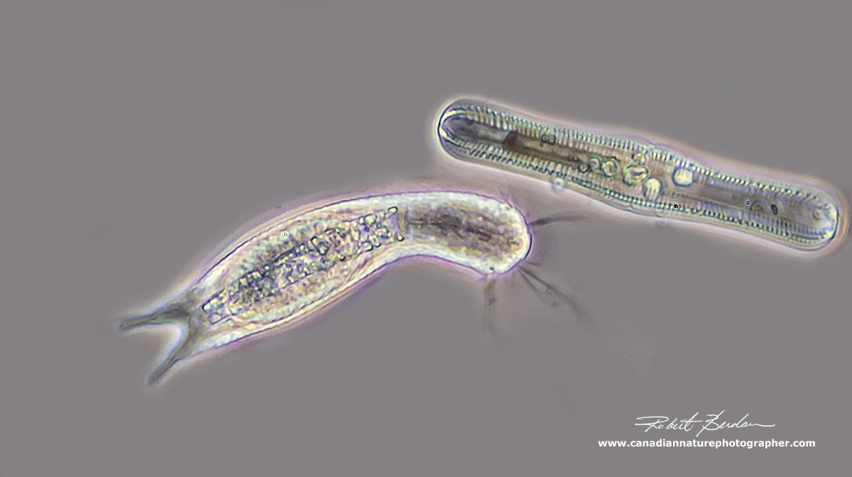 Lepidodermella squamata and a Diatom (Pinnularia nobilis) Phase contrast microscopy 400X by Robert Berdan ©