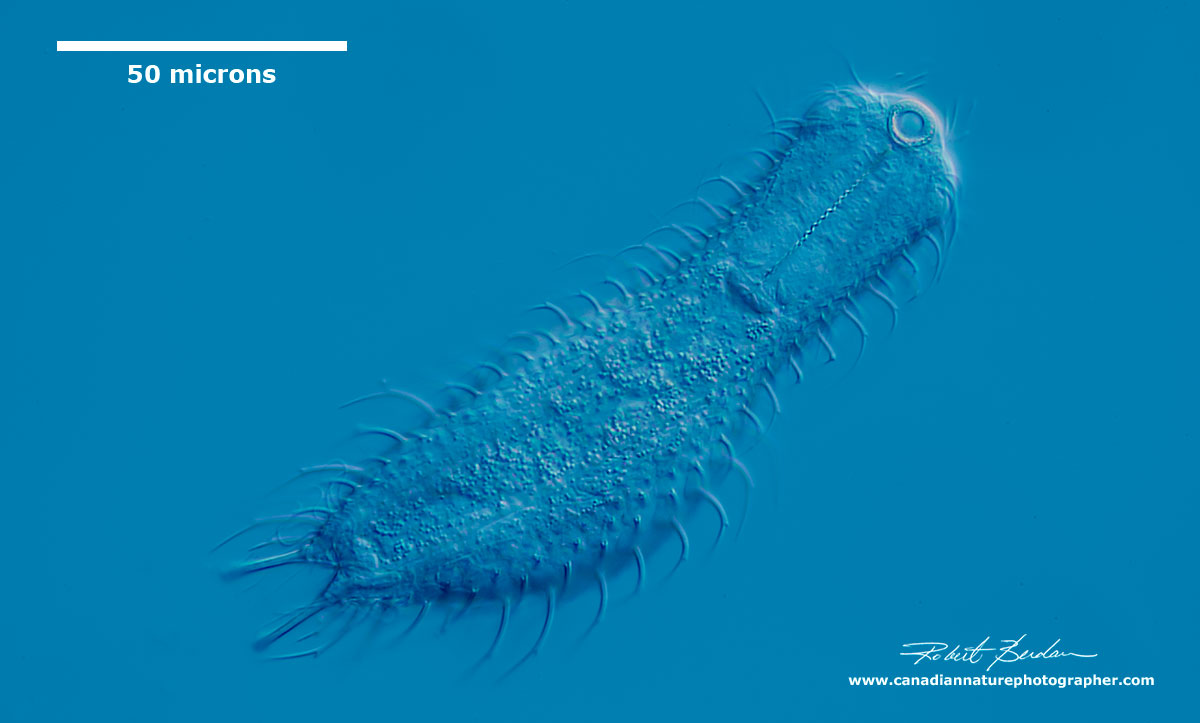 Ventral view of Gastrotrich - Chaetonotus sp by Robert Berdan ©