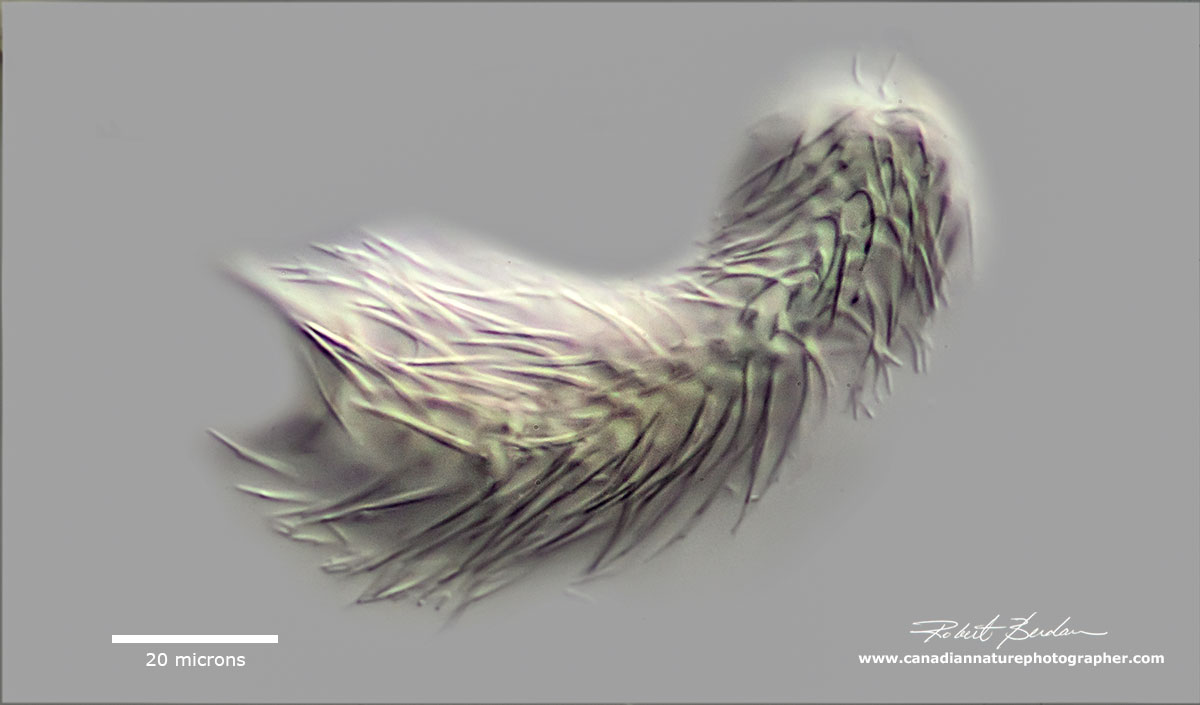 Chaetonotida sp - I focused on the dorsal surface to show the porcupine-like spines by Robert Berdan ©
