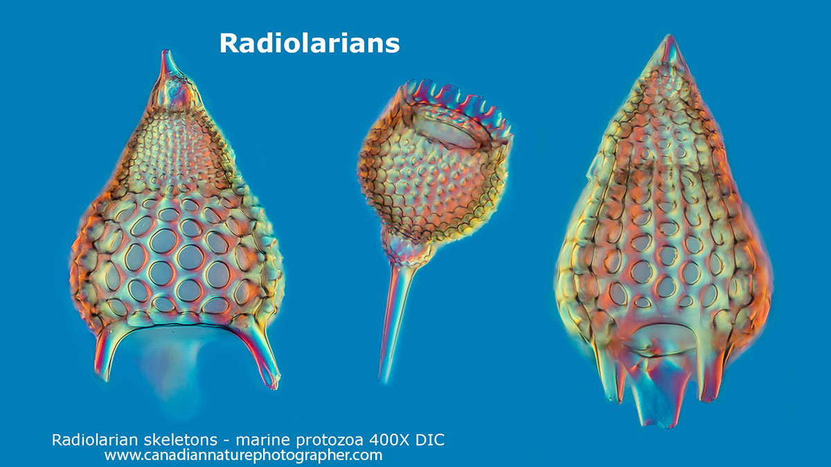 Radiolarians from fossil samples from the Netherlands DIC microscopy Robert Berdan ©