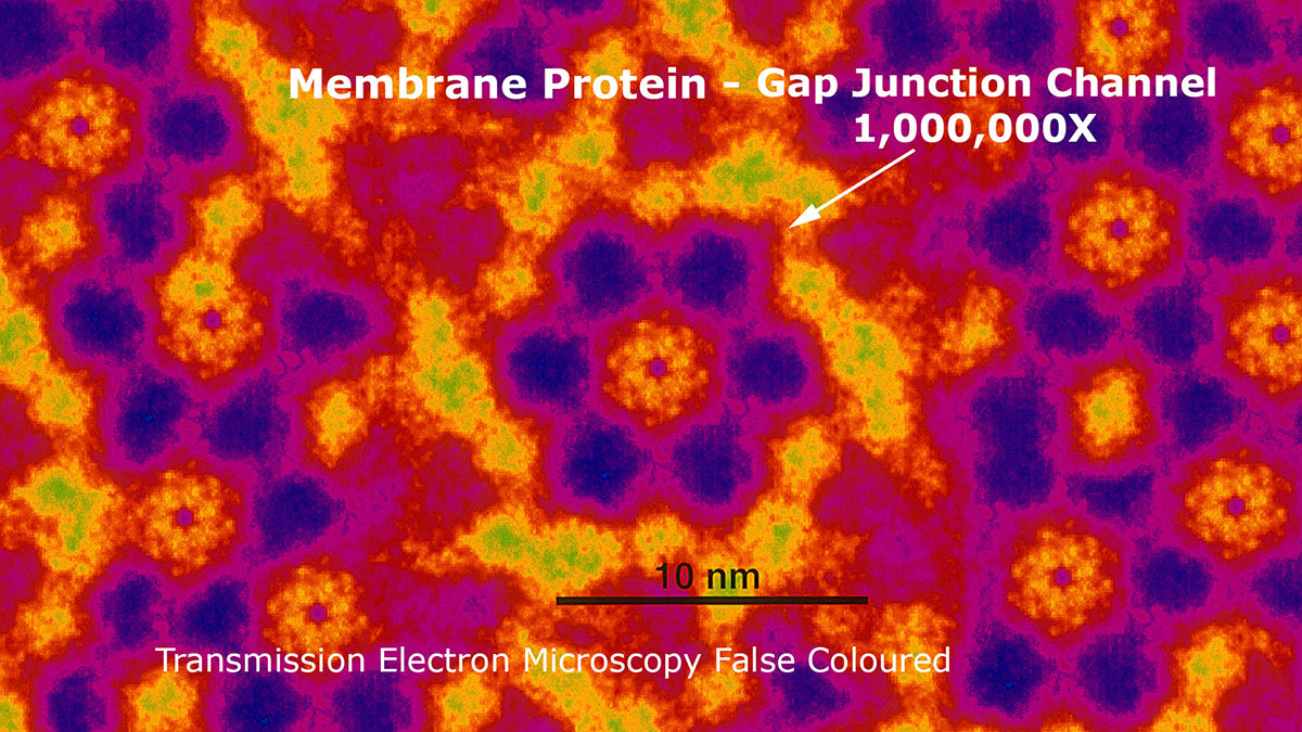 Gap junction protein magnified 1,000,000X by transmission electron microscopy Robert Berdan ©