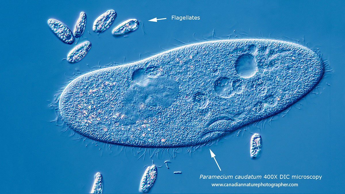Paramecium caudatum surrounded by smaller flagellates DIC microscopy by Robert Berdan ©