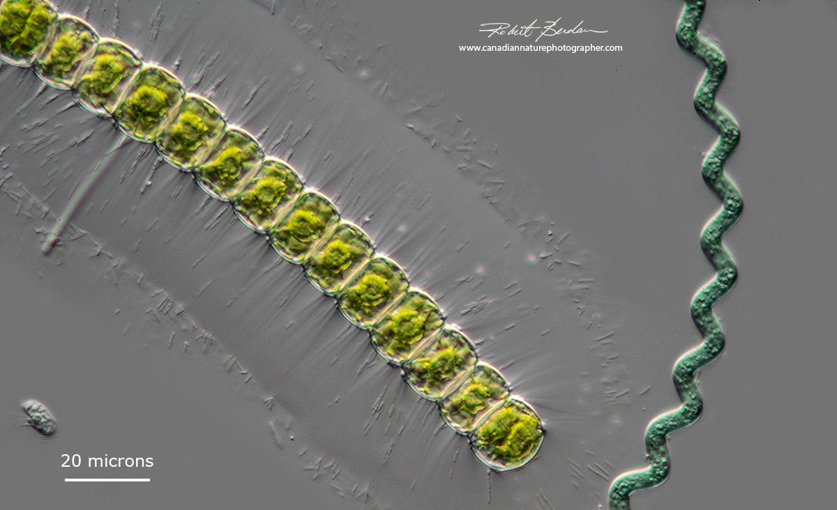 Arthrospira and Hyalotheca DIC microscopy Robert Berdan ©