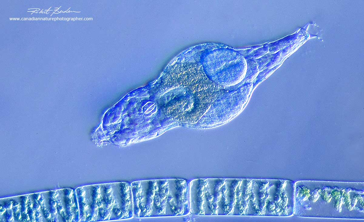 Bdelloid rotifer and filament of algae - Spirogyra 400X by Oblique illumination microscopy Robert Berdan ©