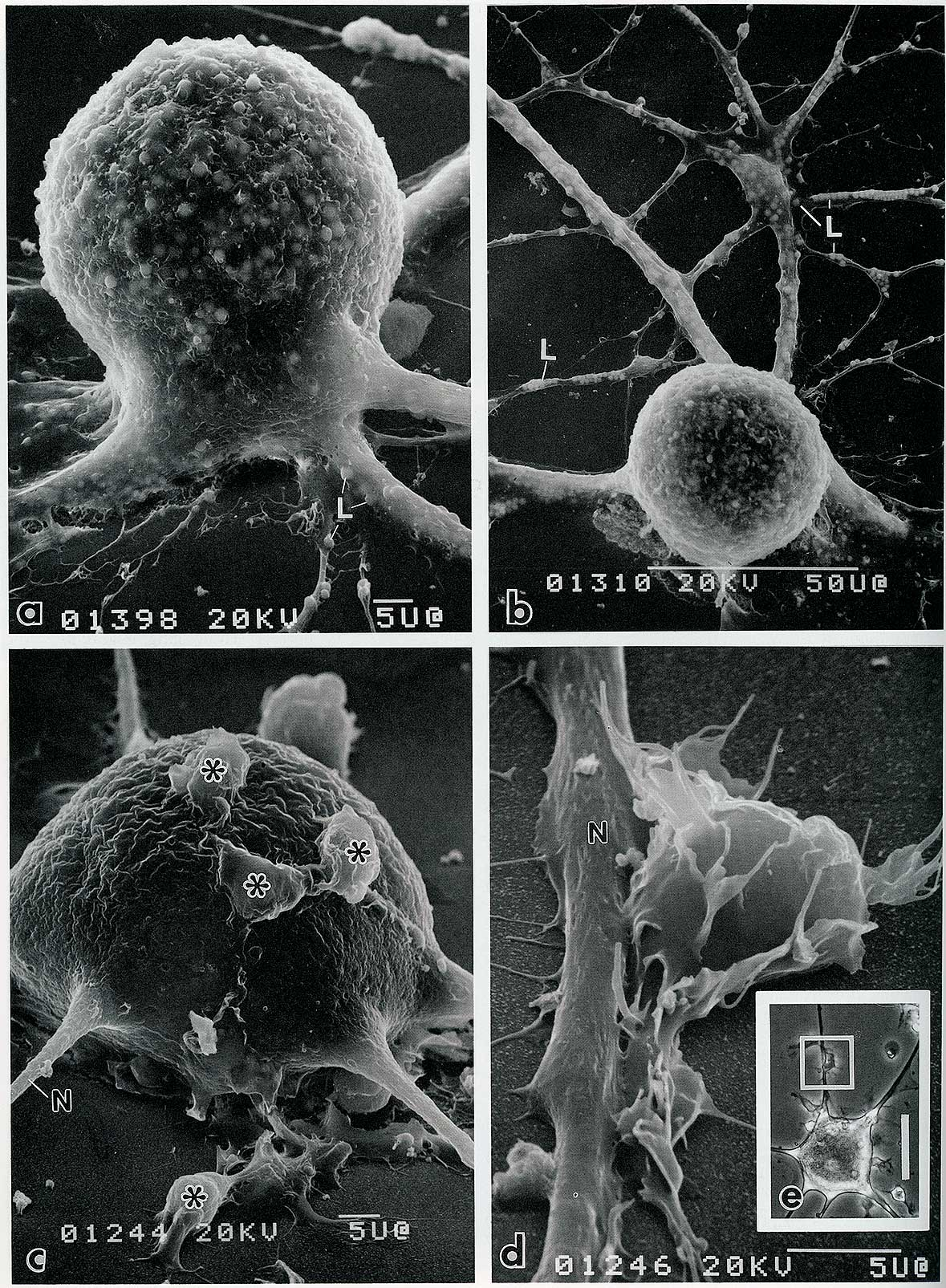 scanning electron micrographs of neurons in culture Robert Berdan ©