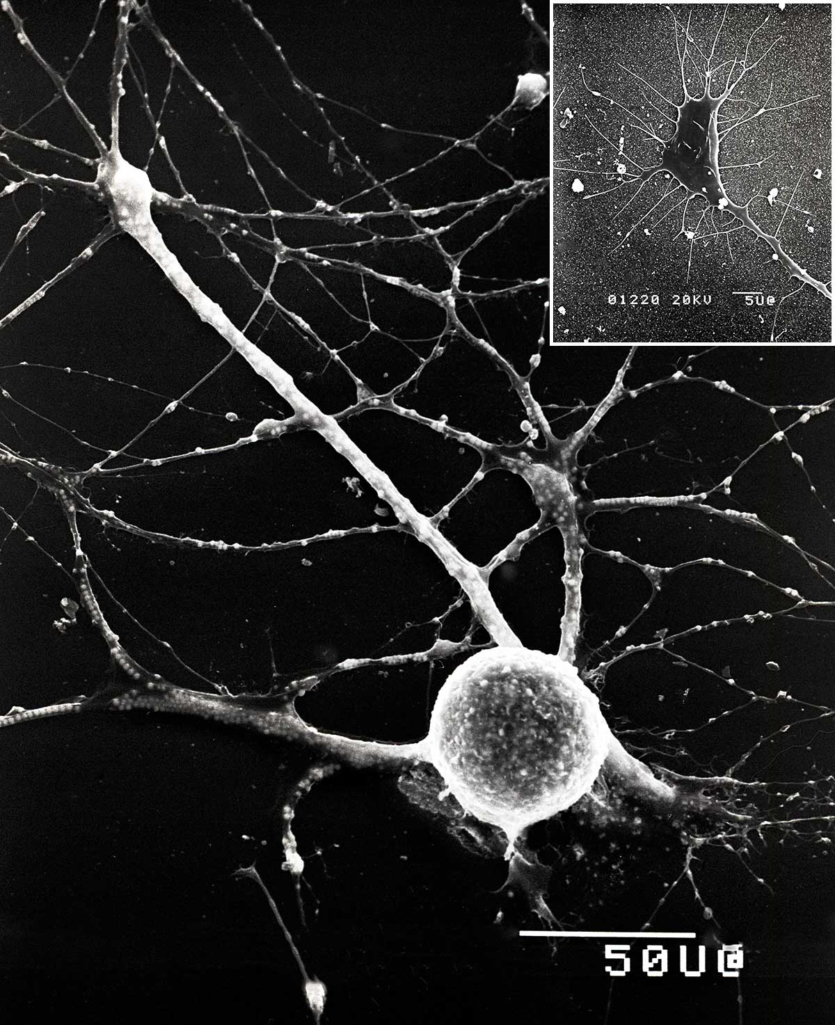 Isolated neuron and grown cone by scanning electron microscopy Robert Berdan ©