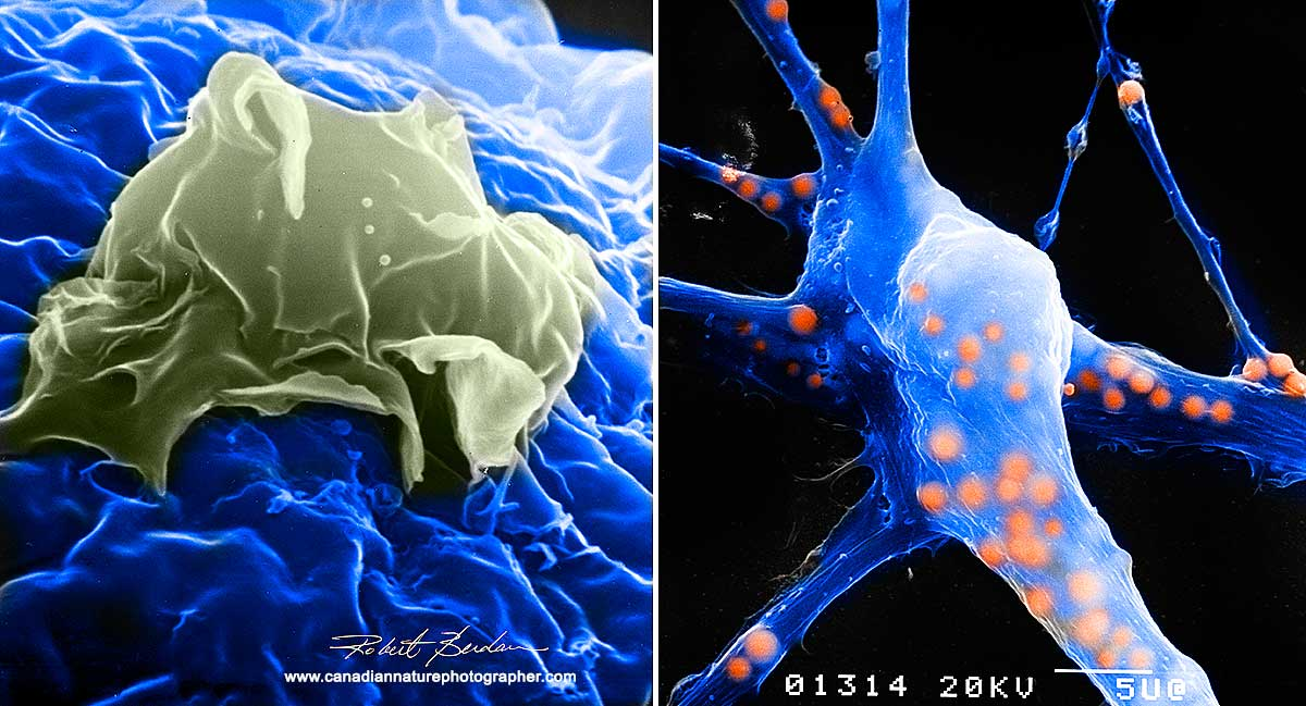 Scanning electron micrographs of neurons in culture by Robert Berdan