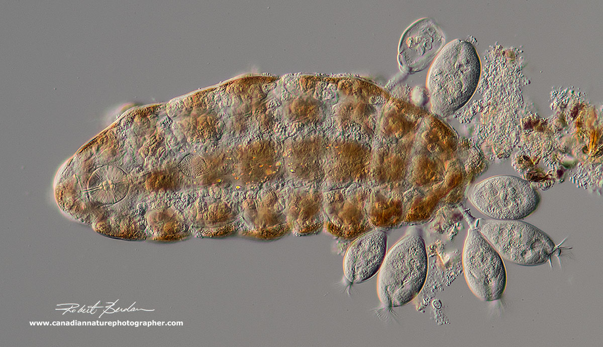 Ramazzottius oberhaeuseri with attached protozoa Pyxidium tardigradum ciliates - parasites by Robert Berdan ©