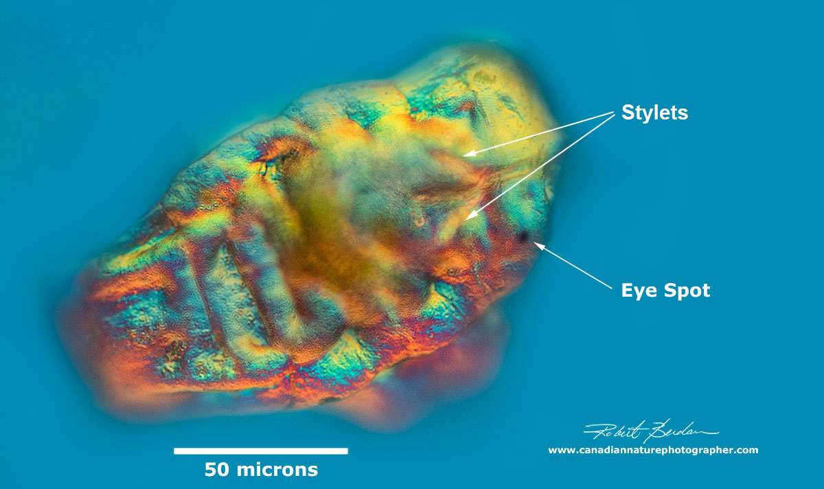 Tardigrade tun by DIC microscopy by Robert Berdan ©