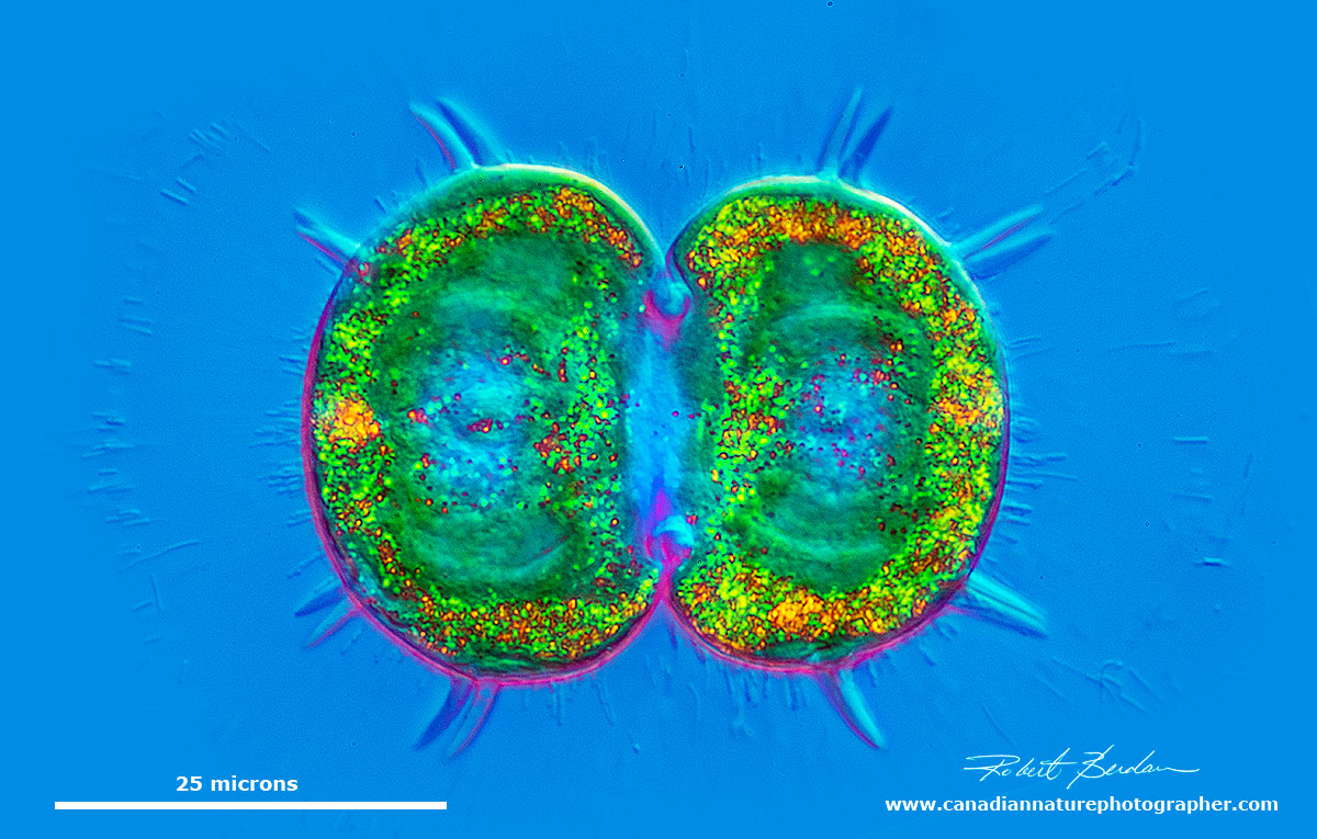 Spinocosmarium sp of desmid - DIC microscopy by Robert Berdan ©