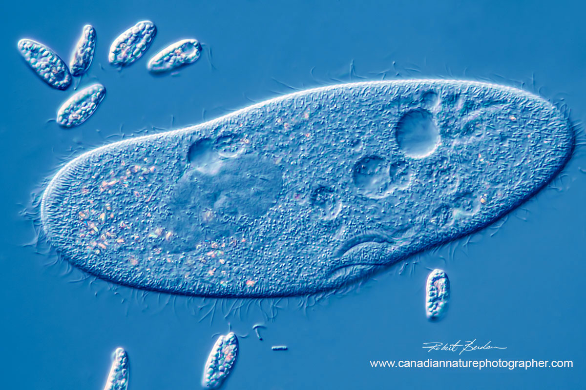 Paramecium caudatum surrounded by smaller euglenoids, 400X DIC microscopy by Robert Berdan ©
